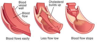 Comment réduire son taux de cholestérol ?