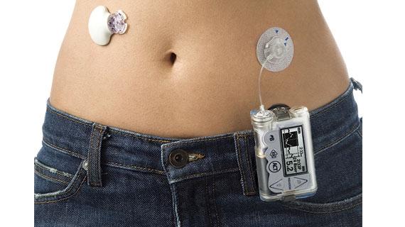 pompe-a-insuline