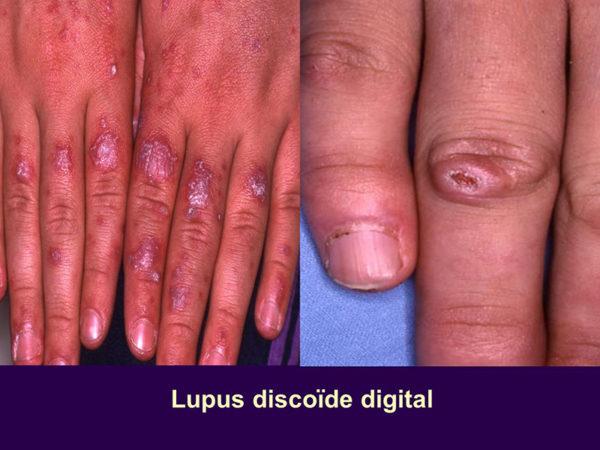 Les signes déterminant la présence lupus de dans l'organisme