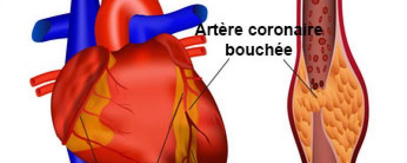 Comment prévenir l'infarctus du myocarde ?